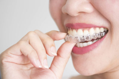 A smiling woman holding invisalign or clear teeth aligners